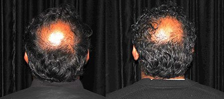 Before and after PRP hair loss therapy