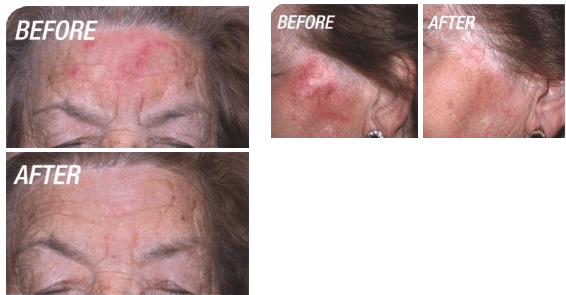Before and after photodynamic therapy