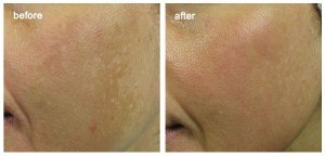 Before and after cosmeceuticals