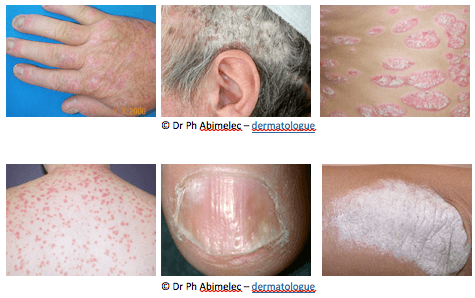 Psoriasis on the head, head, back, fingernails, and elbows