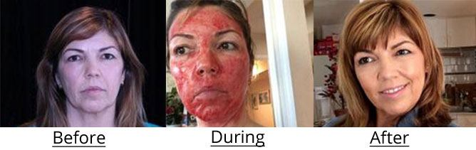 Before, during, and after vampire facial