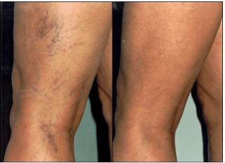 vein therapy vancouver